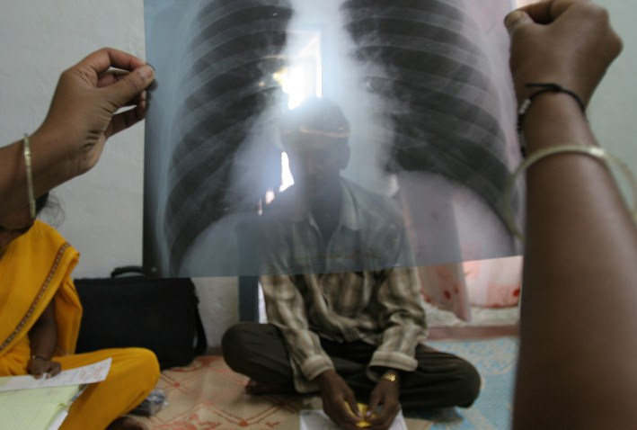 Photo of Muslim refugees bringing wave of tuberculosis to Minnesota… CDC silent, media blackout
