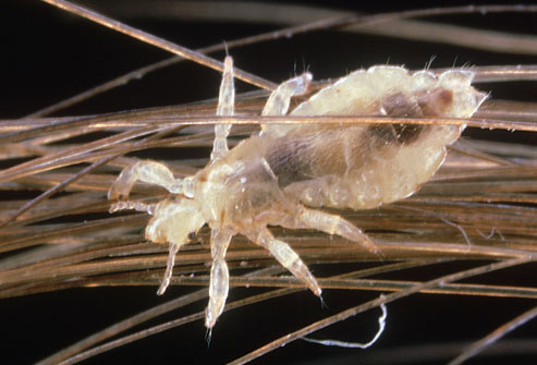 Photo of The Blessed LICE of Islam