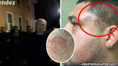 Photo of Cops Beat Man for Filming Them Abuse His Mom, Leave Badge-Shaped Scars All Over His Body