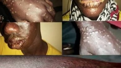 "Photo of A Previously Unknown ""Mystery Disease"" That Causes Sores On The Skin Has Already Spread To 700 People In Africa"