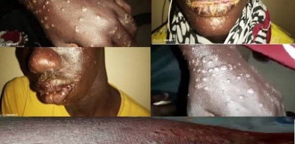 "A Previously Unknown ""Mystery Disease"" That Causes Sores On The Skin Has Already Spread To 700 People In Africa"