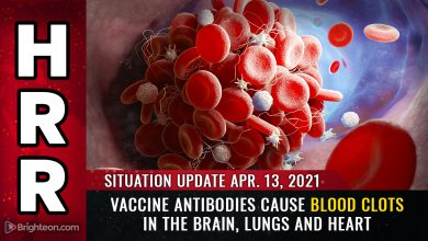 Photo of Vaccine antibodies CAUSE blood clots in the brain, lungs and heart… FDA calls halt to J&J vaccine as deaths accelerate