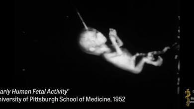 Photo of Dr. Fauci funds the organ trafficking of aborted babies, helping researchers graft baby scalps onto rodents